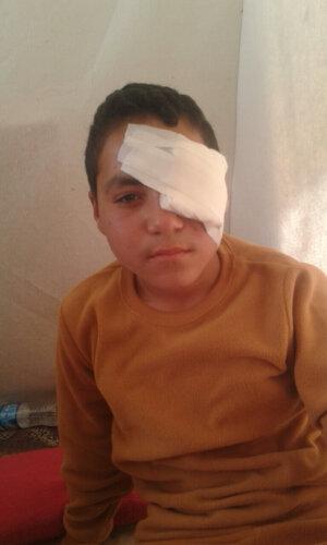 4b Dreng får øjenoperation